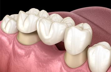 Dental Bridges - Pedro Arteche