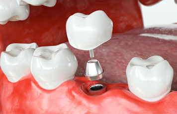 Single Tooth Implants - Pedro Arteche