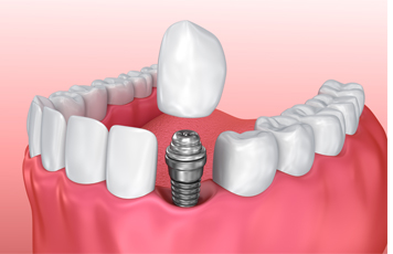 What are Dental Implants? - Pedro Arteche